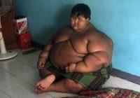 Solo comía y dormía: La historia del niño más obeso del mundo